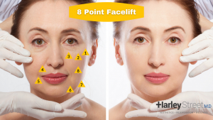 areas pinpointed by an 8 point facelift from harley street medical doctors.