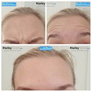 image showing reduction of wrinkles in forehead