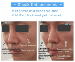 cheek enhancement