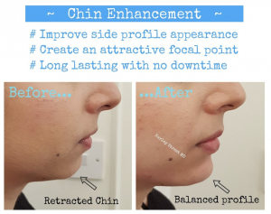 Non-Surgical Chin Augmentation | Harley Street MD