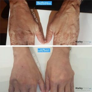 before and after image of hand wrinkle treatment