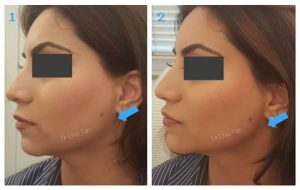 before and after image of jaw line reduction