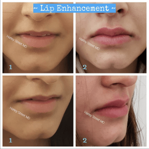 before and after images for lip enhancement