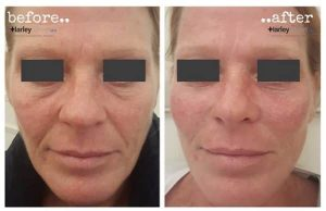 before and after image of non surgical facelift