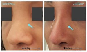 before and after non surgical nose reshaping