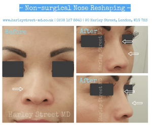 no surgical nose reshaping before and after