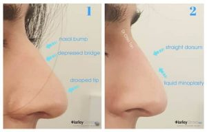 before and after nose reshaping
