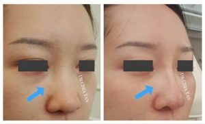 nose reshaping before and after photo