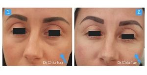 image showing before and after eye fillers