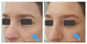 woman before and after tear trough treatment