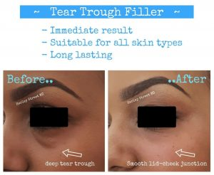 tear trough filler before and after.