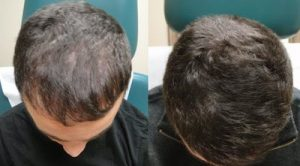 PRP hair loss treatment before and after photos.