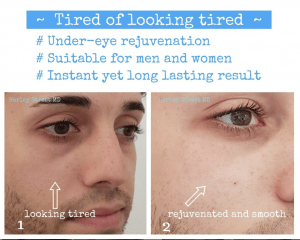 Under eye fillers for men - before and after photos.