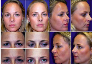 Botox before and after pictures.
