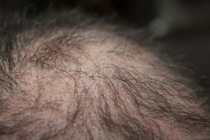man losing hair, Hair Loss Treatment