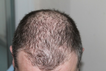 hair loss man balding thinning