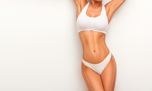 Woman's body outlined with broken lines for cosmetic treatment.