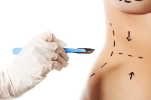 surgical lines being drawn on a torso, symbolic of surgery concept.