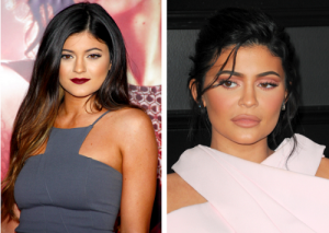 Kylie Jenner before and after cosmetic surgery