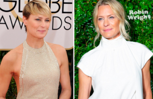 Robin Wright before and after cosmetic surgery