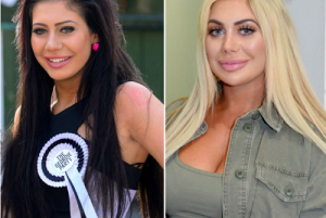 chloe ferry before and after cosmetic surgery
