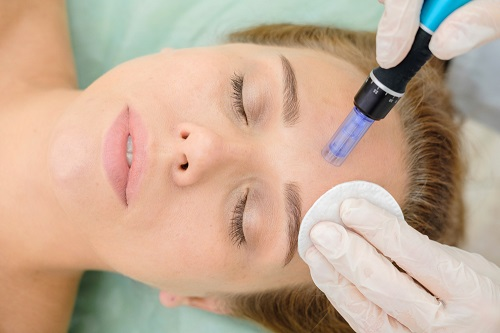 a woman having micro-needling treatment - a post explaining what is micro-needling.